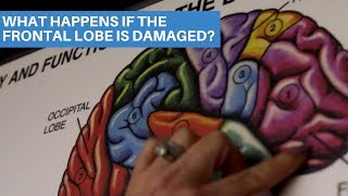 What happens if the frontal lobe is damaged? | De Caro & Kaplen, LLP New York Brain Injury Lawyers