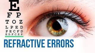 Refractive errors of the eyes