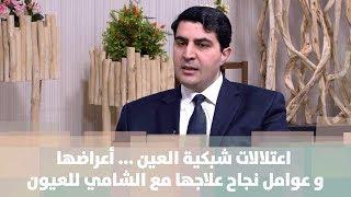 د. عمر الزعبي -  اعتلالات شبكية العين ... أعراضها  و عوامل نجاح علاجها مع الشامي للعيون