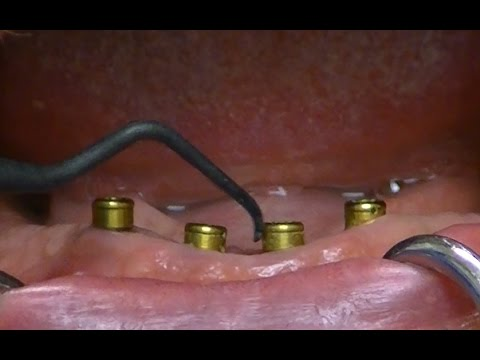 Cleaning & Maintaining Zest LOCATOR Overdentures Techniques