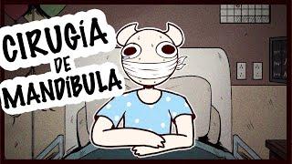 Tuve Mi Mandíbula Cerrada Por 2 Meses / SomeThingElseYT [ESPAÑOL] (FANDUB)
