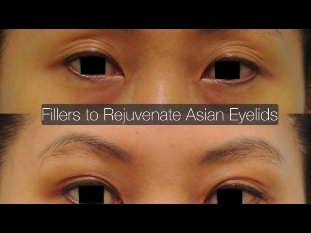 Aging Asian Eyelid Multiple Fold Correction with Fillers