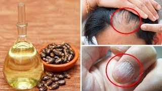 9 Amazing Things Castor Oil Can Do To Your Body