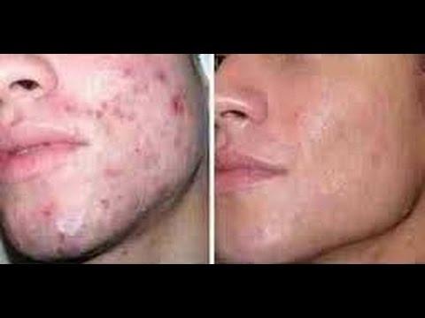 Remedios para el acne juvenil caseros