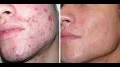 hqdefault - Remedio Herbolario Para Acne