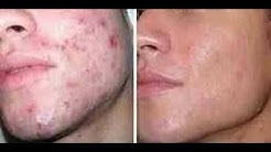 hqdefault - Remedios Para Combatir El Acne Severo