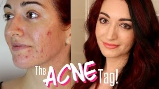 THE ACNE TAG & My Acne History | DiamondsAndHeels14 & Daiserz89 Thumbnail