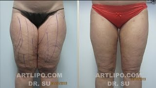 Thighs Legs Liposuction Tampa, Sarasota, Orlando | Patient Story, Before and After | Expert Dr. Su