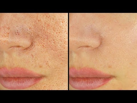 5 Ways To Shrink & Unclog Pores IMMEDIATELY