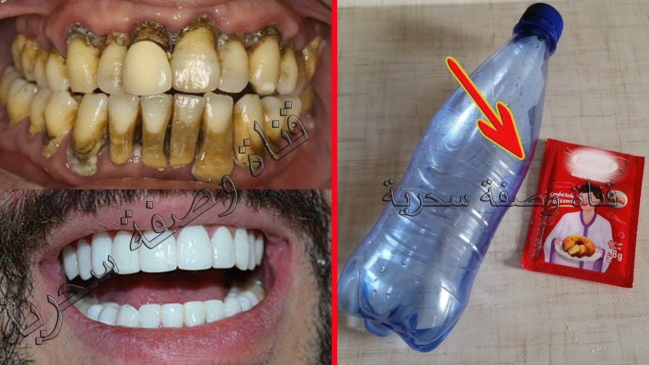 نتيجة بحث الصور عن مضمض به أقل من دقيقة وأقسم بالله لن تصدق تبيض الأسنان الصفراء وتجعل الكالكير والجير يسقط أمام عينيك