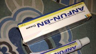 ANFUN _BN cream full hindi review 2 days m fungle infection ko shi kro