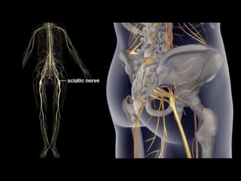 hqdefault - What Is Sciatica And How Is It Treated