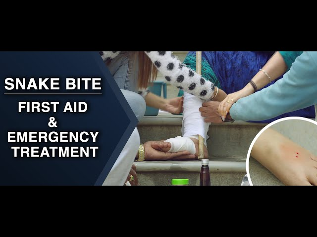 First Aid and Emergency Treatment - Snake Bite : ENGLISH