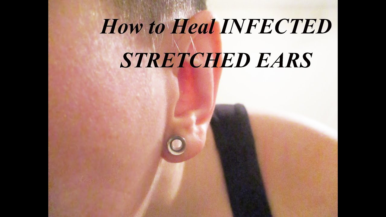 Gauging or stretching your ears information and stretch gauge kits - Gauging Or Stretching Your Ears Information And Stretch Gauge Kits 16