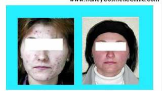 tca chemical peel photos before after treatment