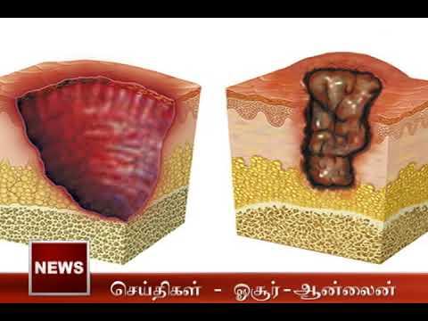 Bruli Ulcer - Flesh eating ulcer spreading across the world