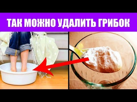 Грибок ногтей на ногах, лечение грибка простым способом