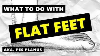 Fix Flat Feet: Pes Planus & What Exercises To Do