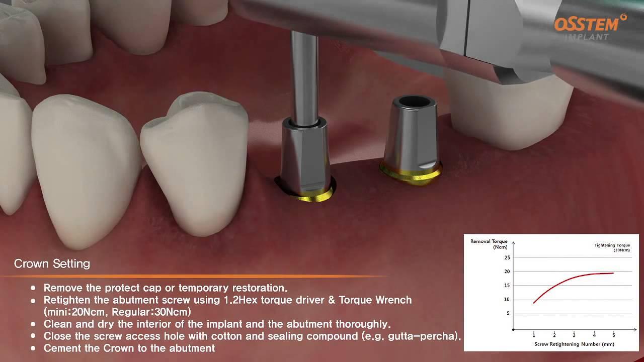 Download Postup implantace a otiskování pro TSIII SA Osstem Implant
