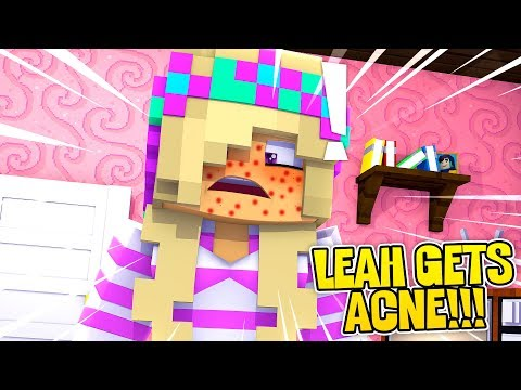 Minecraft LEAH GETS SEVERE ACNE BEFORE HER BIG DATE!!! Donny & Leah Adventures