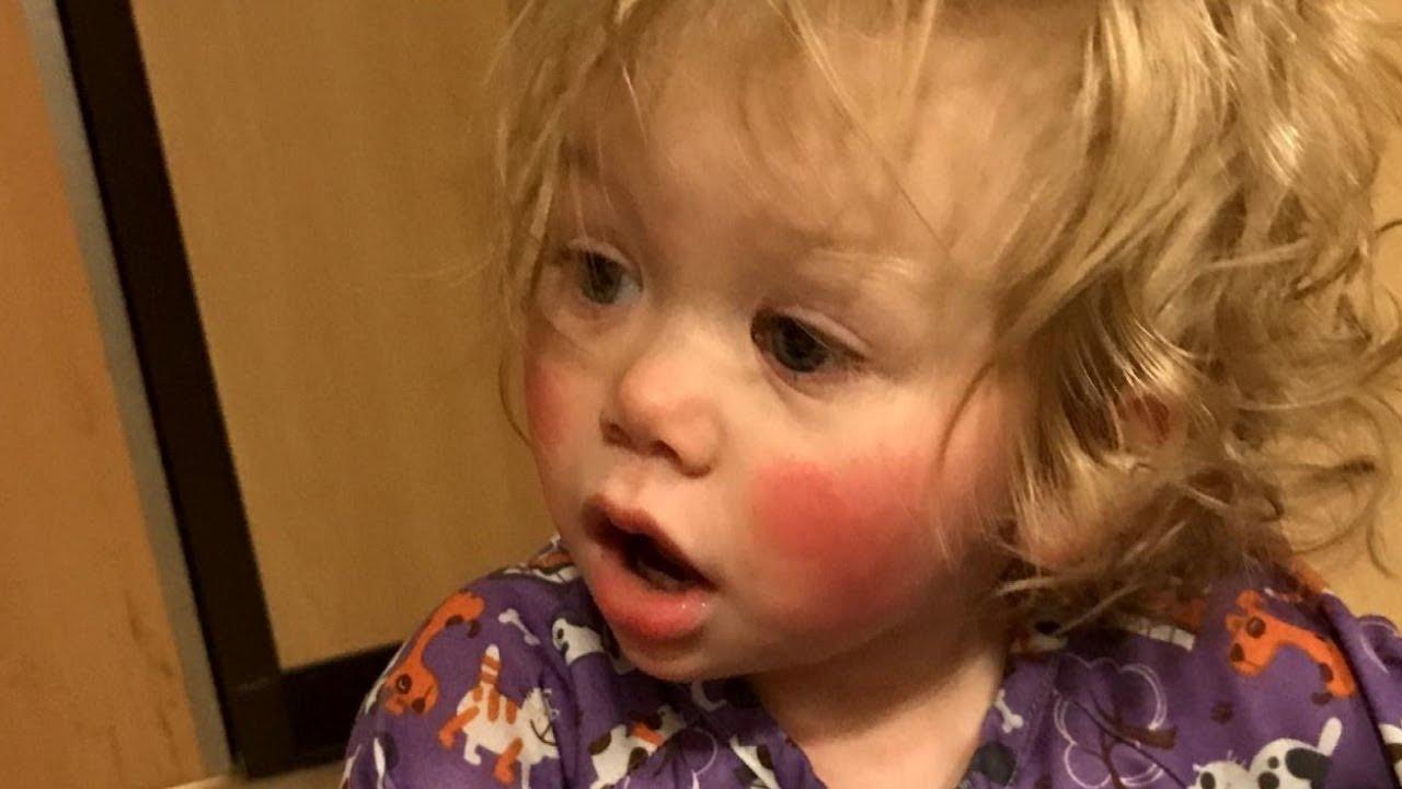 Esta Linda Criança Não Pode Chorar, Porque Suas Lágrimas Doem. Isto É Comovente!