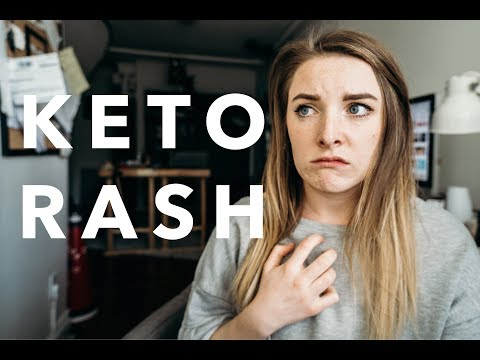 I CURED MY KETO RASH | My Experience With Keto Rash And How I Found Relief