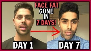 How To Reduce FACE FAT In 1 Week - 100% WORKS!!