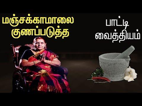 பாட்டி வைத்தியம் | Captain Tv |  | 05.03.2019 | #captaintv #இயற்கைமருத்துவம் #நாட்டுவைத்தியம்  Like: https://www.facebook.com/CaptainTelevision/ Follow: https://twitter.com/captainnewstv Web:  http://www.captainmedia.in  About Captain TV  Captain TV, a standalone Tamil General Entertainment Satellite Television Channel was launched on April 14 2010. Equipped with latest technical Infrastructure to reach the Global Tamil Population A complete entertainment and current affairs channel which emphasison • Social Awareness • Uplifting of Youth • Women development Socially and Economically • Enlighten the social causes and effects and cover all other public views  Our vision is to be recognized as the world's leading Tamil Entrainment, News  and Current Affairs media network most trusted, reaching people without any barriers.  Our mission is to deliver informative, educative and entertainment content to the world Tamil populations which inspires people through Engaging talented, creative and spirited people. Reaching deeper, broader and closer with our content, platforms and interactions. Rebalancing Tamil Media by representing the diversity and humanity of the world. Being a hope to the voiceless. Achieving outstanding results efficiently.