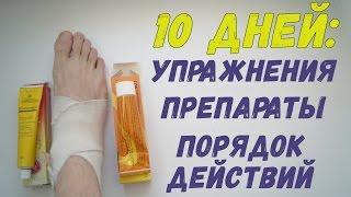 видео 14. Восстановление мышц, связок, суставов при травме