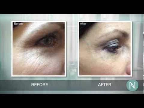 Nerium Before and After / Cylk Cozart