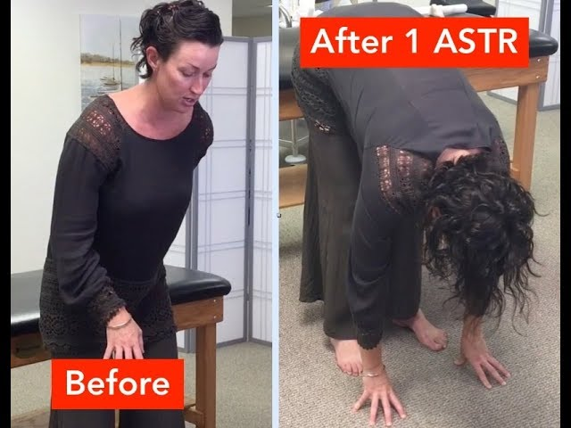 Back & Neck Pain Relieved in Just 1 ASTR Treatment