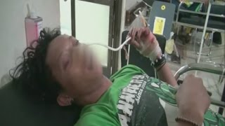 Bonek Korban Miras Oplosan Bertambah Menjadi 5 Orang - BIP 09/01