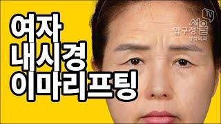 중년 여성의 눈처짐+이마주름+미간주름 한번에 해결!?