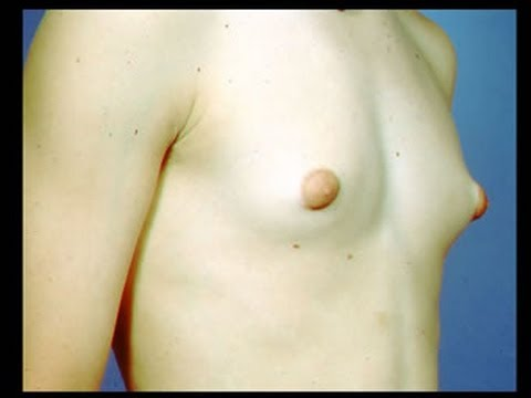 Teen puberty budding breasts