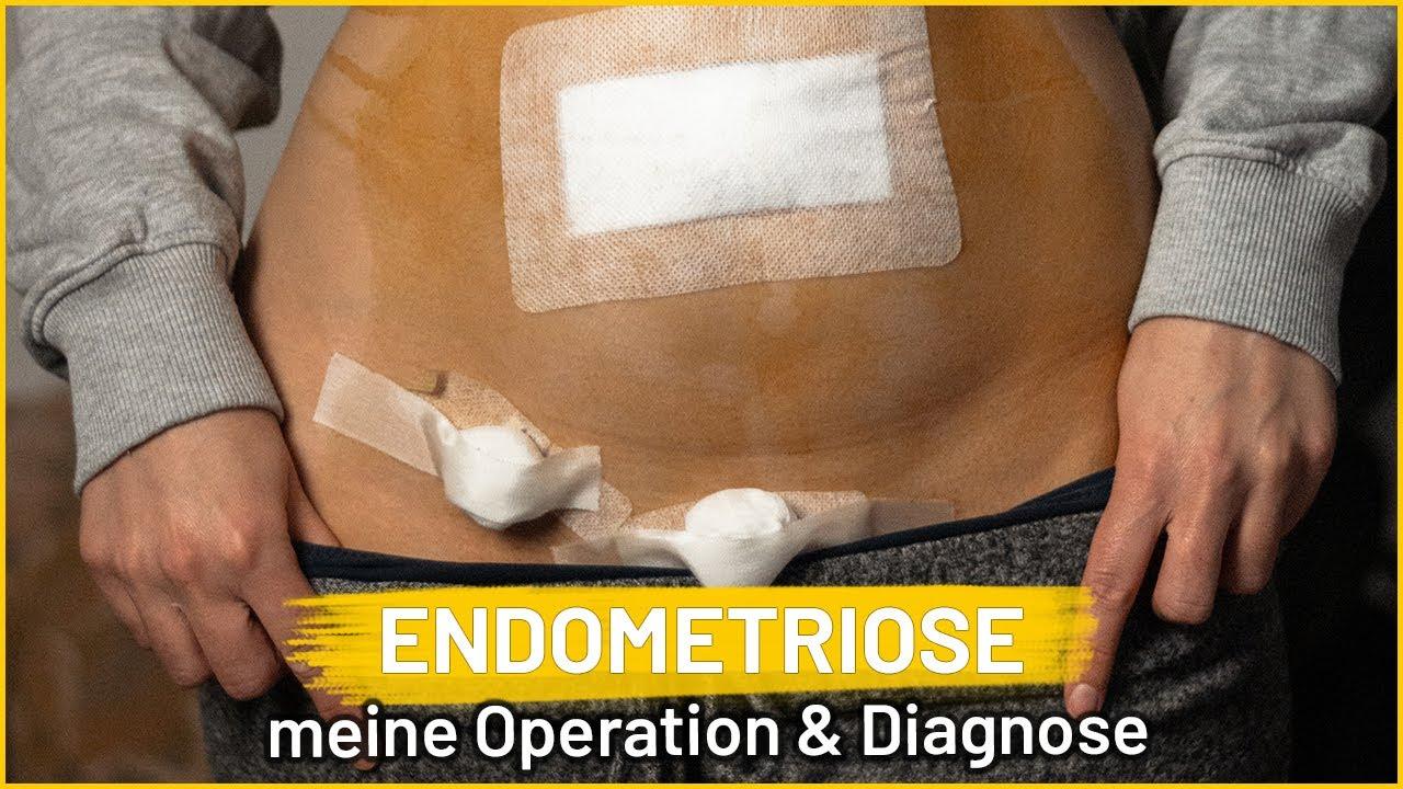 Meine Endometriose Operation und Diagnose | Erfahrungen