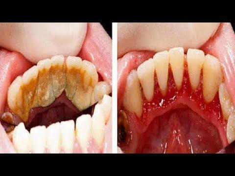 هل تعلم كيف تزيل رواسب الأسنان فقط في البيت دون الذهاب إلى الطبيب.. مذهل حقا !