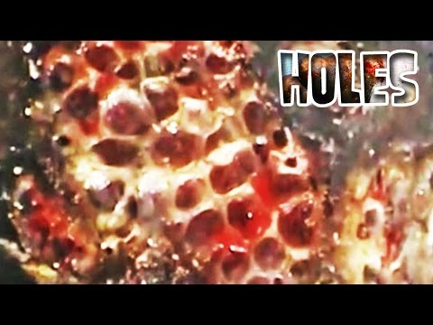 Trypophobia!  Jigger Flea Removal and Fear of Holes