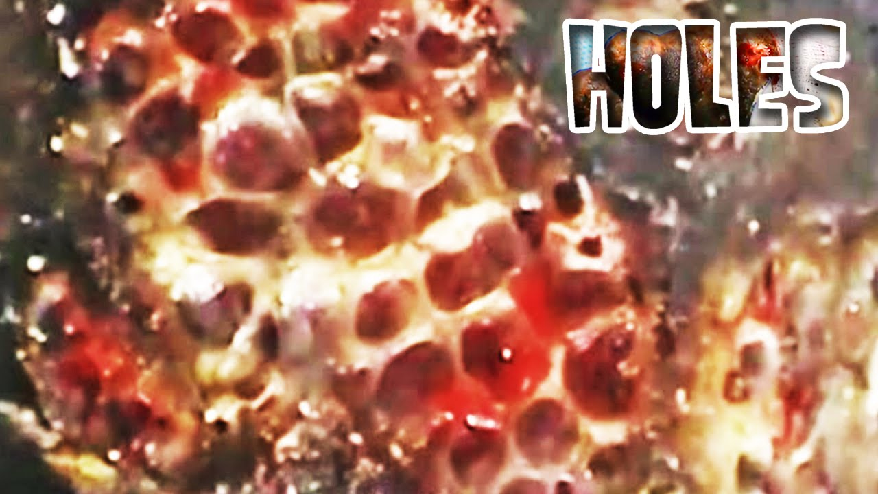 Trypophobia Jigger Flea Removal And Fear Of Holes Youtube