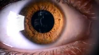 Как лечить ячмень или синдром сухого глаза. Теплые компрессы на веки.