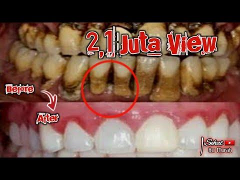 Cara Menghilangkan Karang Plak Gigi Dan Gigi Kuning Putih Kembali || SEHAT ITU MURAH
