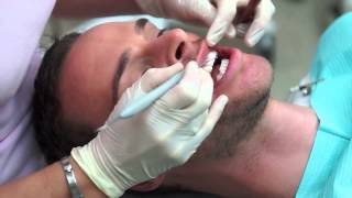 Zoom Teeth Whitening in Dubai