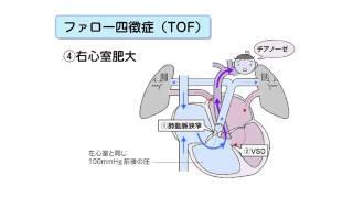 先天性心疾患 心室中隔欠損症
