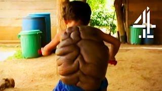 Turtle Boy   Bodyshock   Channel 4