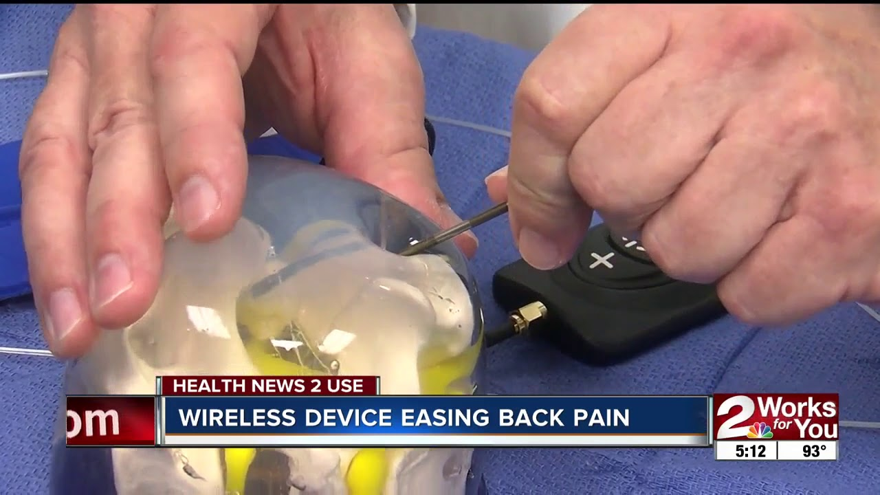 Opioid Alternative for Back Pain with a Spinal Cord Stimulator - News Story