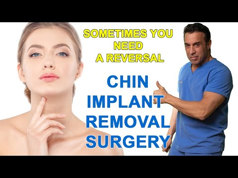 Removal of Chin Implant Surgery
