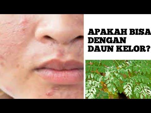 Cara alami menghilangkan jerawat dengan daun kelor||hah ...
