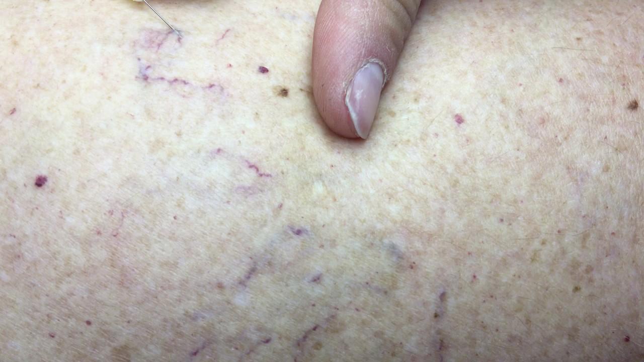 murdărie de la varicoseza