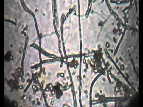 Viable soil streptomyces under microscope 1 youtube for Soil under microscope