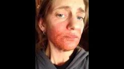 hqdefault - Candida Die Off Cause Acne