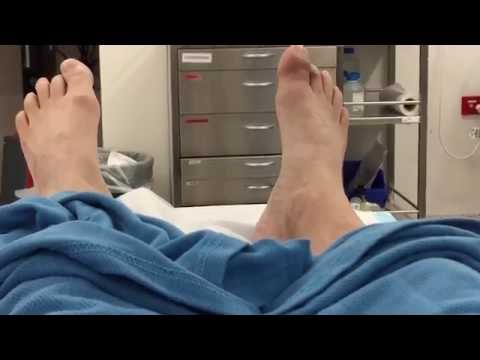 Great toe amputation without anaesthetic (very graphic)
